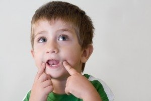 Вербална диспраксия